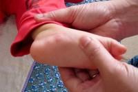 Những bệnh thường gặp ở trẻ nhỏ vào mùa hè